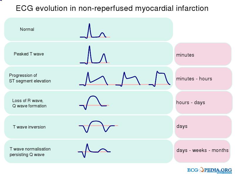 signos de infarto en el electrocardiograma