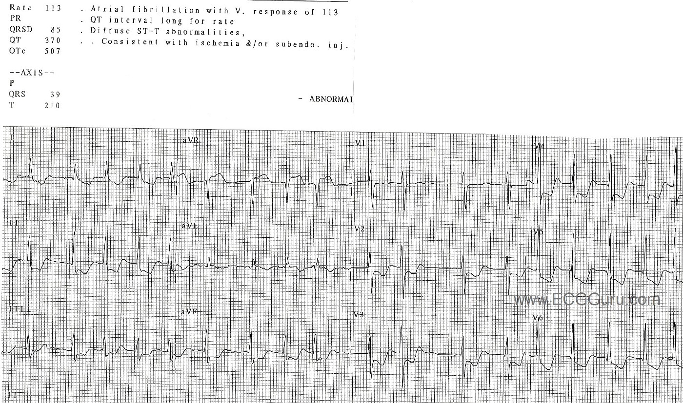 And Degree Heart 1 Second Type Block 2