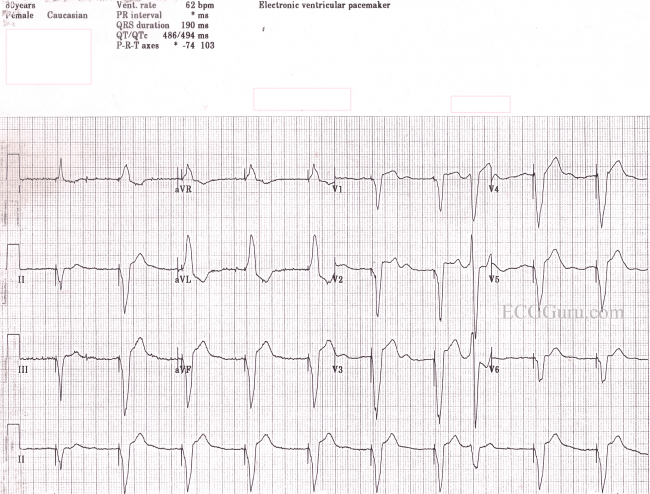Ventricular pacing | ECG Guru - Instructor Resources