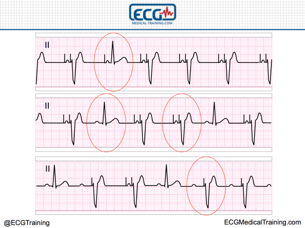 The Basics of Paced Rhythms - ECG Medical Training
