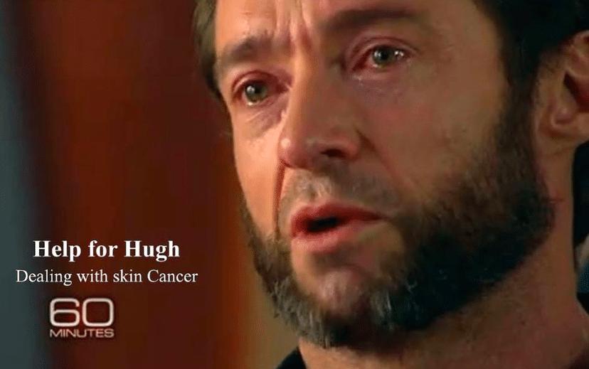 Hugh Jackman skin cancer scare