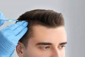 Hair Transplant cure baldness