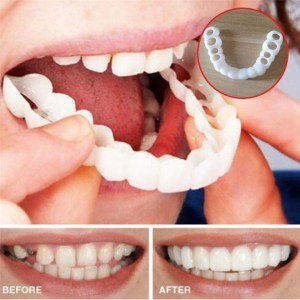 Beautiful Teeth Cover, Denture Instant perfect smile veneers, Comfort Fit Flex fake tooth cover