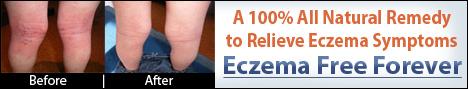 Eczema Free Foreve