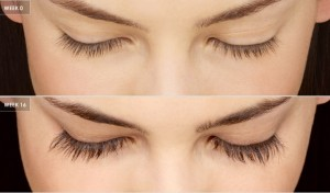 eyes-care-treatment