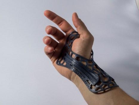 wrist brace 3d print