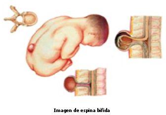 Espina bífida. Ácido fólico