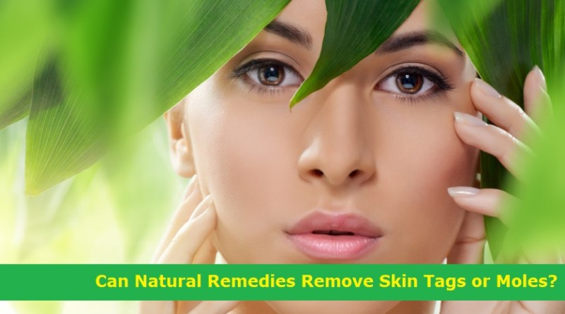 Remove Skin Tags