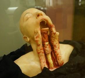 喉嚨解剖。