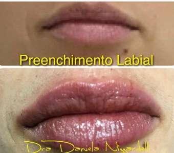 Preenchimento-Labial-Im.001-340x299 Title category