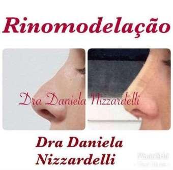 Rinomodelação-Im.001-340x335 Title category