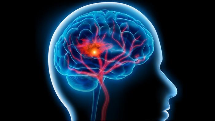 عادات خاطئة تسبب 40% من حالات الزهايمر