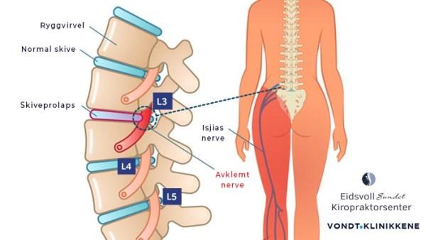 Prolaps i Ryggen - Avklemming av L3 nerveroten