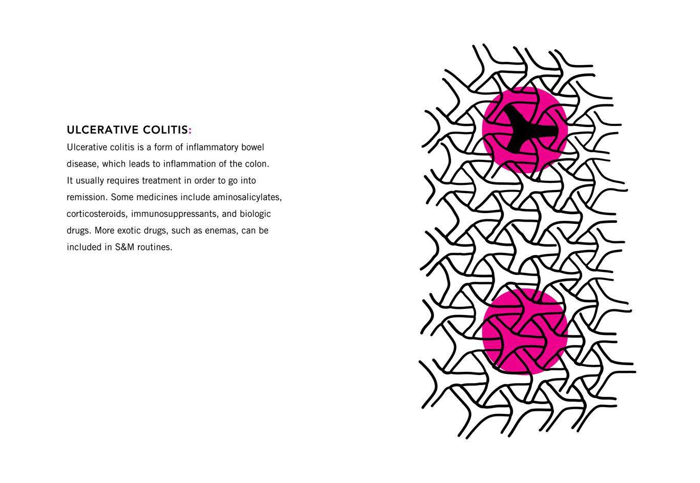 Colon Ulcerative Colitis