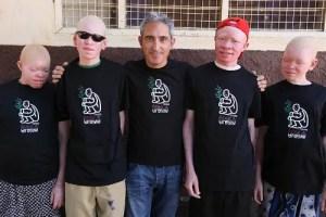 20110901albinos1.g - África albina y la discriminación: camiseta solidaria