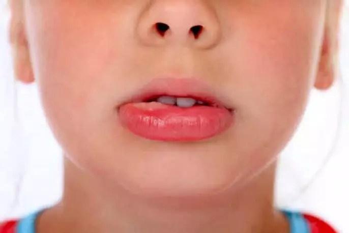 Las lesiones orales: Mucocele oral y las aftas bucales