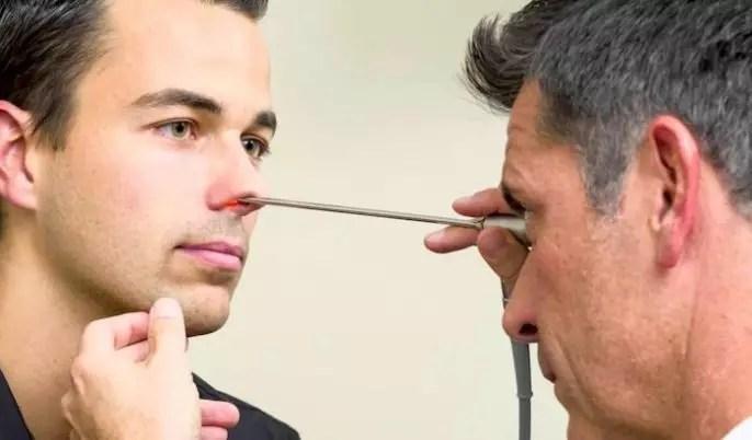 Septoplastia para la desviación del tabique nasal