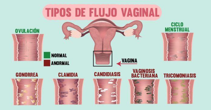 El flujo vaginal