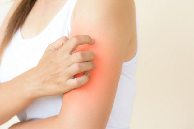 Los pacientes con dermatitis atópica poseen una especial susceptibilidad a las infecciones de la piel.