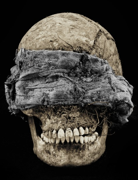 A blindfolded skull unearthed during an exhumation in Guatemala