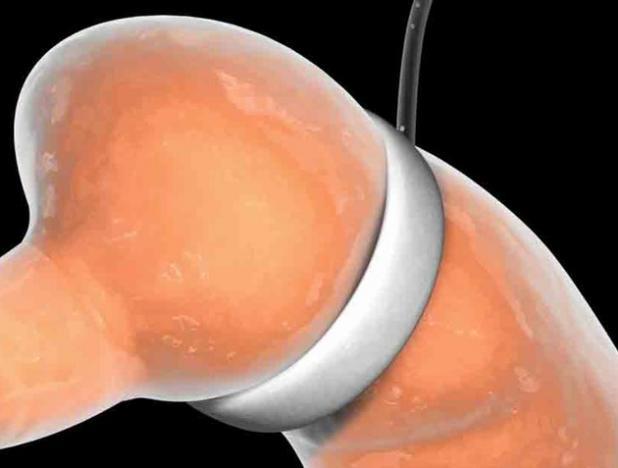 Cirugía bariátrica ofrece más longevidad a pacientes con diabetes y obesidad