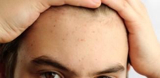 El acné es un problema que afecta a adultos y niños