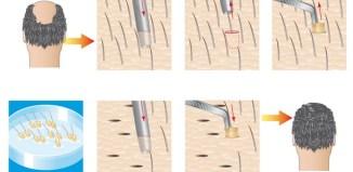 Cirugía Capilar, los injertos de pelo