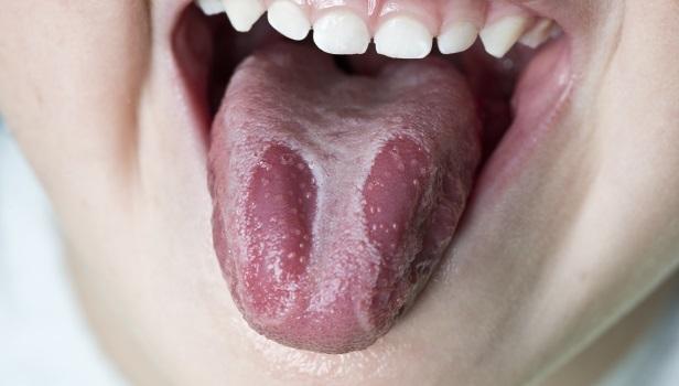 Sintomas de la candidiasis crónica