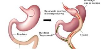 bypass gastrico soluciones para adelgazar