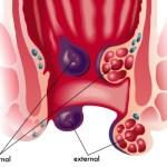 Qué son las hemorroides o almorranas