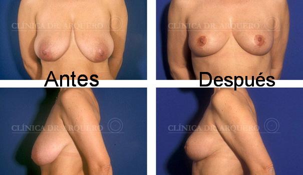 Mastopexia elevación de las mamas caídas