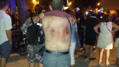 Heridas tras golpes de la policía