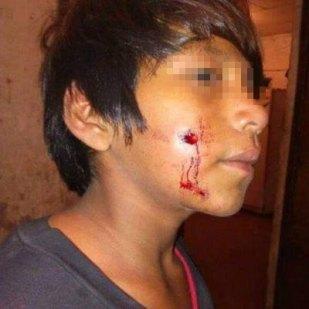 Menores wichis heridos por la policia en Formosa