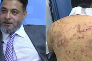 تفاصيل جديدة عن تعذيب الباحث الأردني يونس قنديل.. كتبوا على ظهره بالسكين وأحرقوا لسانه وكسروا أصابعه