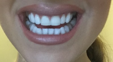 Whitebox teeth whitening strips