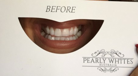 pearly whites australia before and after review