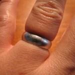 silver ring swollen finger