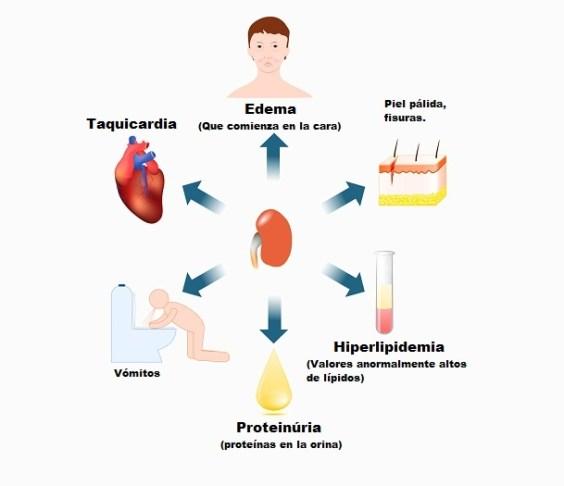 Signos de síndrome nefrótico