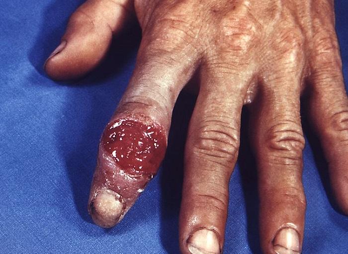 Chancro sifilítico extragenital