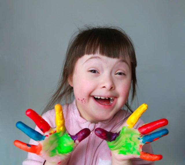 Qué Tan Malo Puede ser el síndrome de Down