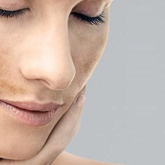 macchie scure sul viso