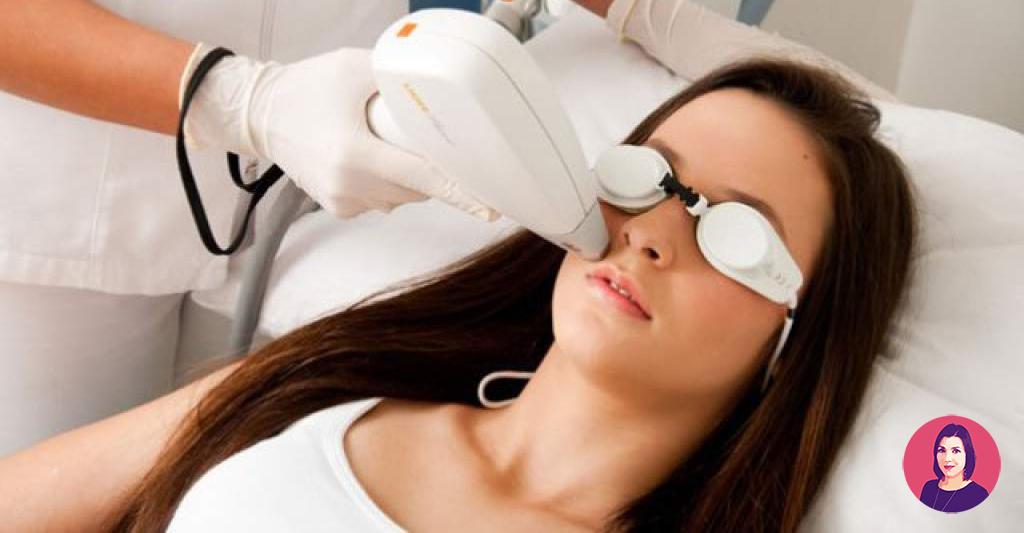 epilazione laser sui nei