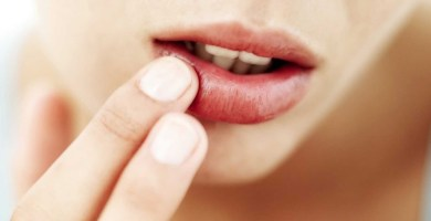 herpes en el labio, que alimentos no comer