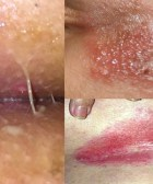 herpes genital femenino