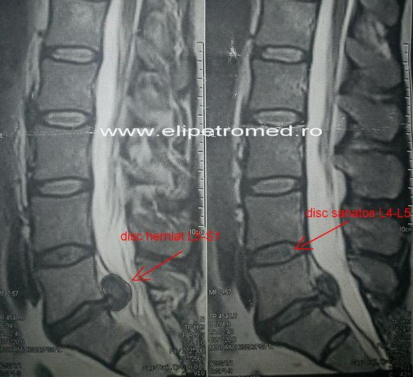 hernie de disc lombara l5-s1