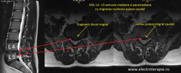 HDL L4-L5
