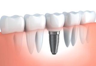 https://i1.wp.com/www.elitedental.cl/home/wp-content/uploads/2015/11/implantologia.jpg?fit=320%2C219