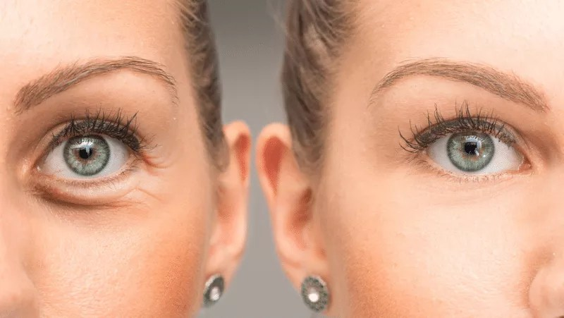 Eye Bag Treatment – Elite MD