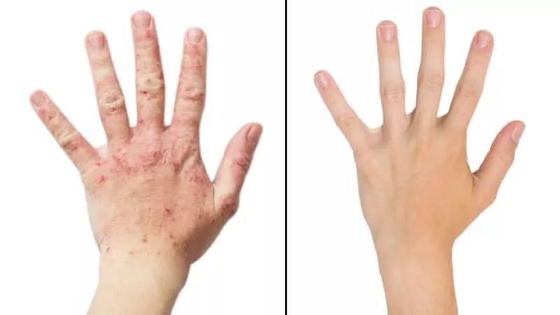"""Résultat de recherche d'images pour """"psoriasis"""""""