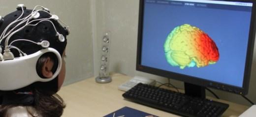 Η ηλεκτρική διέγερση του εγκεφάλου βελτιώνει τη δημιουργικότητα
